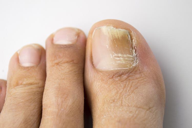 Symptoms of Toenail Fungus