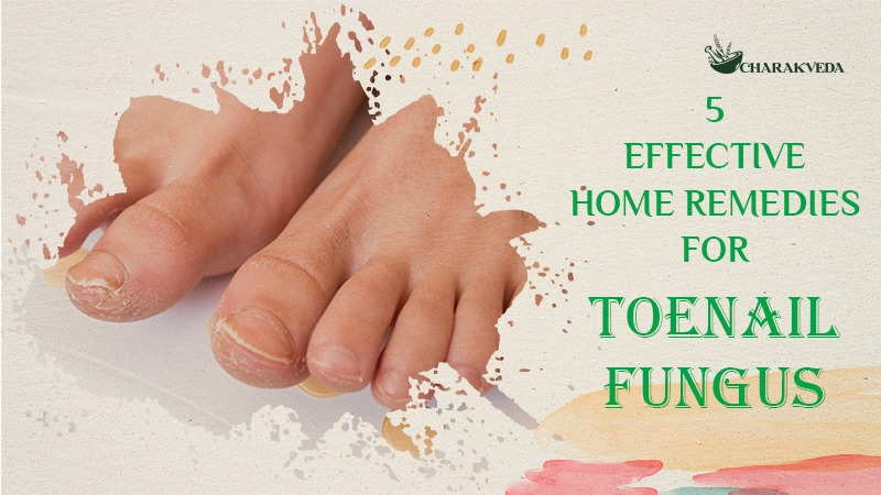 5 Proven and Effective Home Remedies for Toenail Fungus