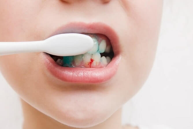 Homeopathic remedy for Bleeding gums