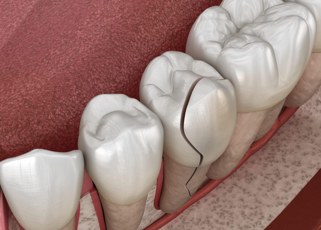 hollowed toothache remedies