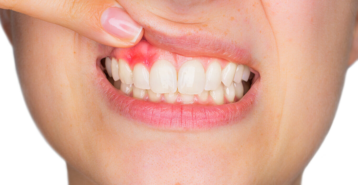 homeopathic remedies for pus in and around tooth